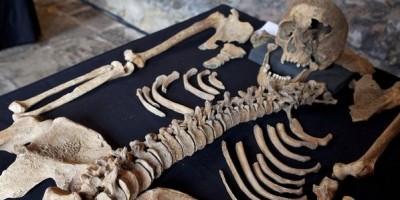 skeleton-400x200
